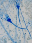 Aspergillus restrictus, Schimmelpilze, Schimmelpilzallergie, Mykotoxine